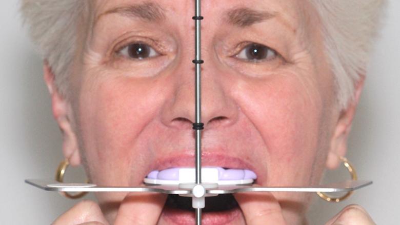 Digitální technika přenosu obličejovým obloukem pomocí dentofaciálního analyzátoru