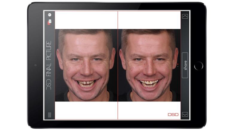 Kdo potřebuje Digital Smile Design (DSD)?
