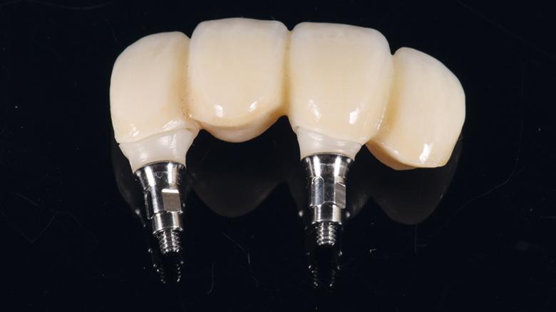 Okamžitá implantace a CAD/CAM rekonstrukce v estetické zóně