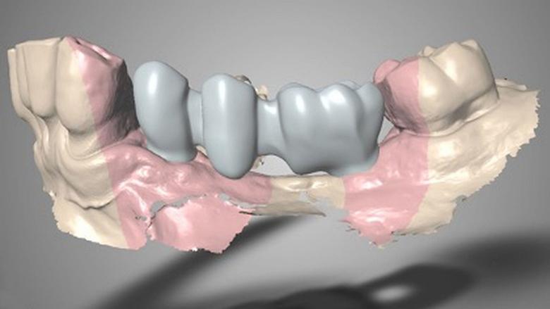 Rehabilitace pomocí kónických implantátů, augmentace kosti a keramického vhojovacího abutmentu