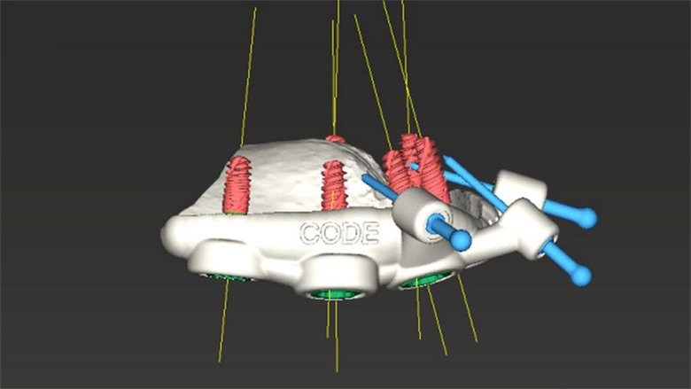 Celková rekonstrukce chrupu pomocí implantátů Straumann BLX a Pro Arch navigované chirurgie